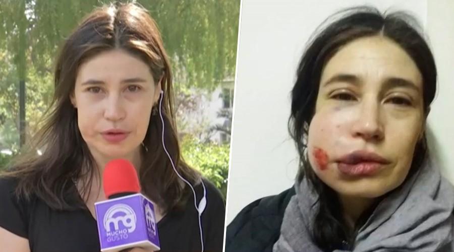 Actriz María Paz Grandjean pide justicia tras recibir balín de Carabineros en su rostro