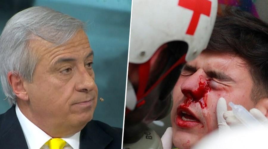 """Ministro Mañalich por perdigones de Carabineros: """"Ha habido un uso y un abuso de esta herramienta"""""""