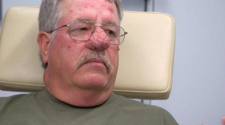 La Dra Sandra Lee sacó 38 lipomas del brazo de una paciente