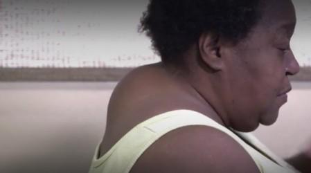 Sandra Lee opera a una mujer que no puede girar el cuello porque tiene un gran bulto en la nuca