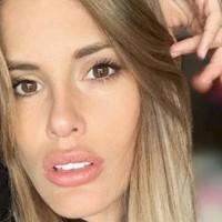 """Tratamiento preventivo de vejez: Gala Caldirola contó como eliminará sus """"arrugas"""""""