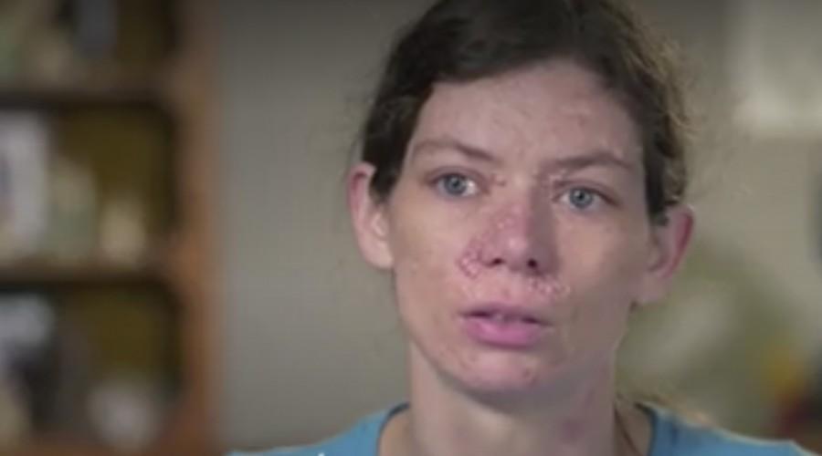 La Dra Lee trató cientos de tumores en el rostro de una mujer