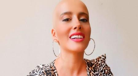 """""""No es justo"""": Mila Correa está hospitalizada con coronavirus mientras continúa su lucha contra el cáncer"""