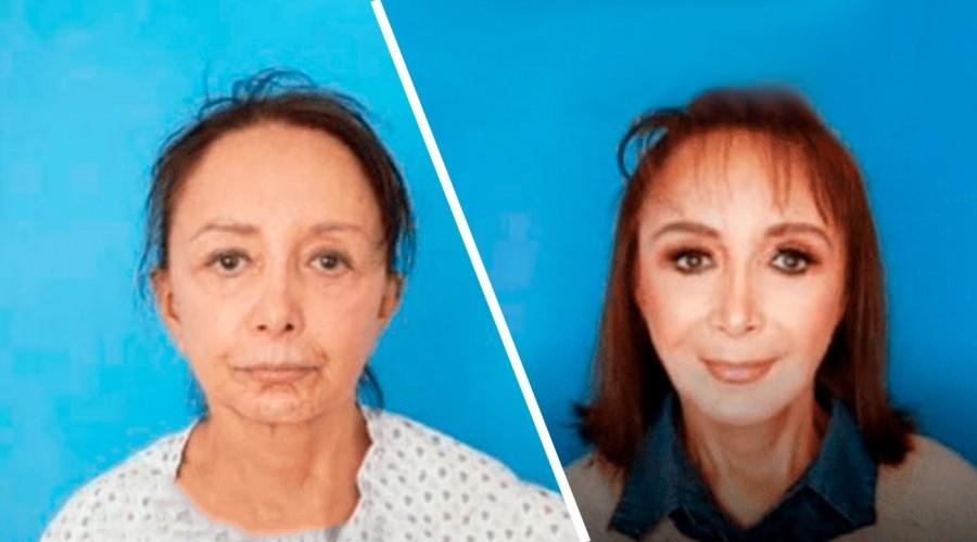 Increíble antes y después: Actriz tras la Chilindrina se sometió a radical cirugía de rostro