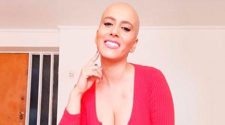 Mila Correa revela su actual situación de salud mientras batalla con el cáncer