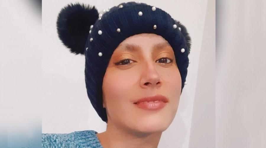 """Mila Correa revela los avances de su tratamiento contra el cáncer: """"Mi cuerpo va retomando su forma natural"""""""
