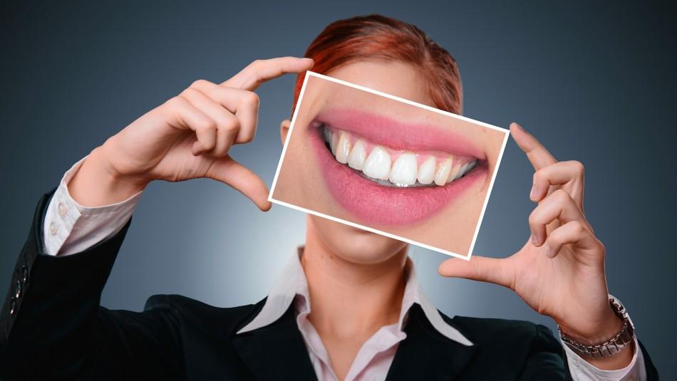 Implantes dentales: La opción para volver a sonreír