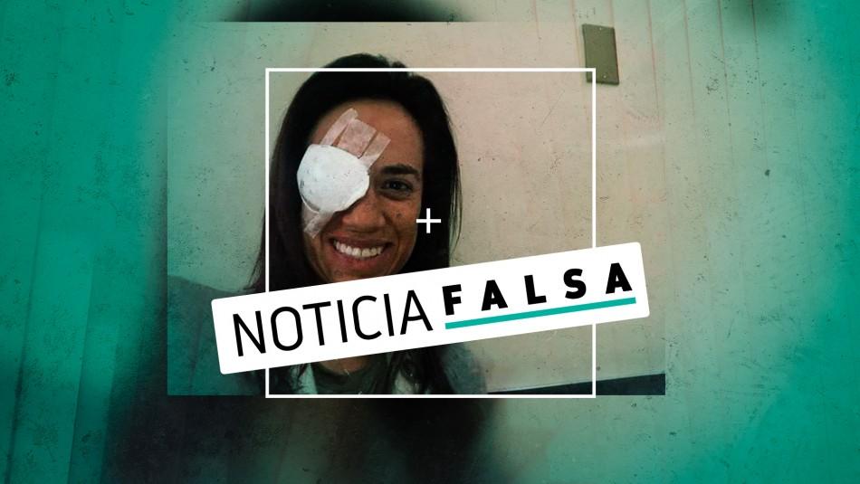 La verdad detrás de la foto de la diputada Núñez con un parche en su ojo