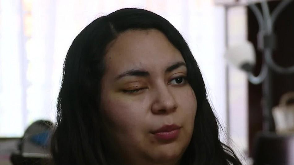 Programas de reparación para víctimas de trauma ocular