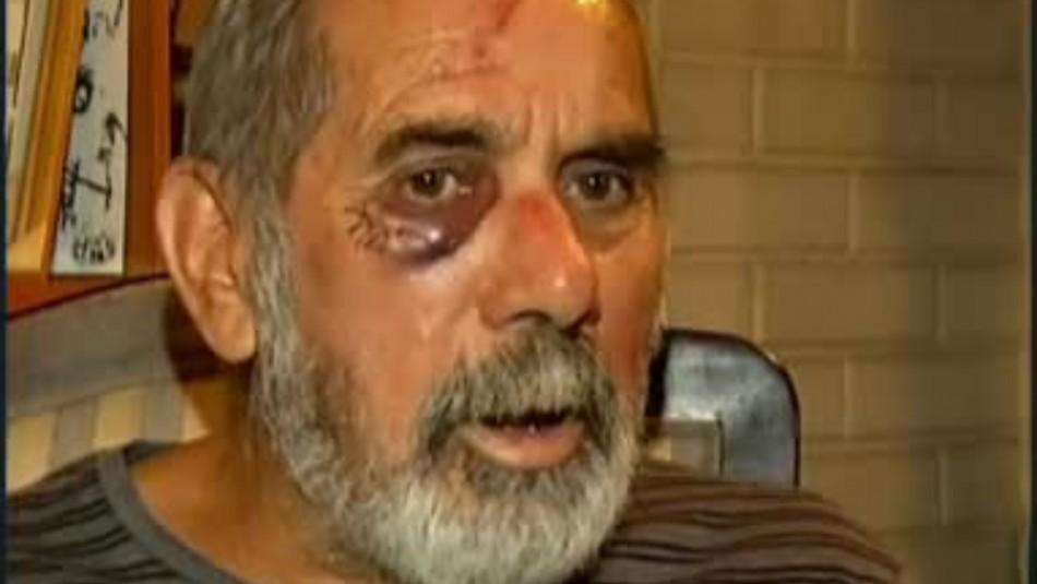 Hombre agredido por Carabineros anunció que tomará acciones legales