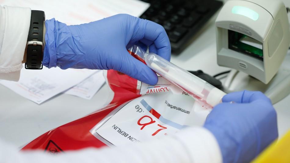 Instituto de Salud Pública entrega listado de tests rápidos más eficientes para detectar el COVID-19