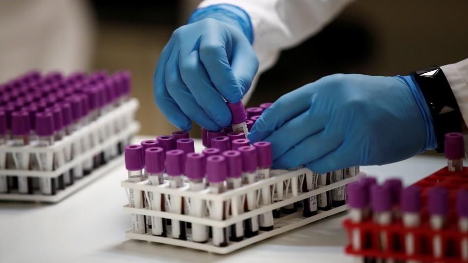 Balance del Minsal: Cifra de fallecidos por coronavirus registra nuevo récord en el país