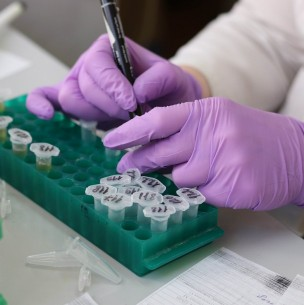 Descubren presencia de coronavirus en lesiones de la piel
