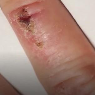 ¿Cómo sanan las heridas? Aquí te explicamos el complejo y fascinante proceso de la cicatrización
