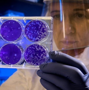 Hallan súper cepa de coronavirus que se contagia 6 veces más rápido