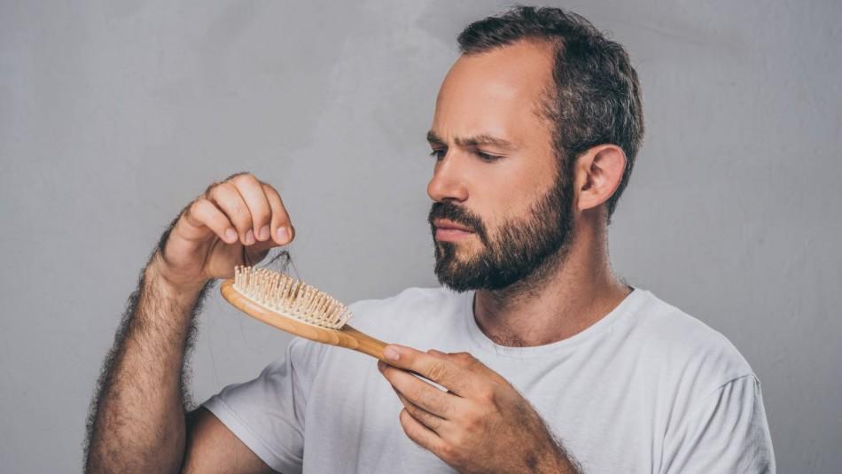 Dan a conocer nuevo efecto secundario del coronavirus: La pérdida del cabello
