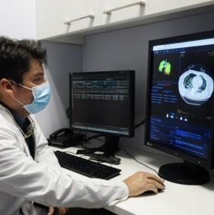 Posta Central detecta coronavirus en minutos con sistema de Inteligencia Artificial
