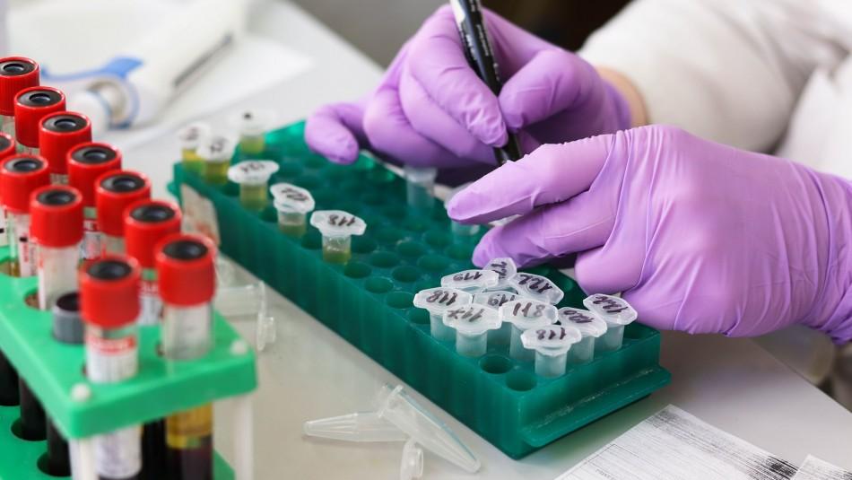Investigadores de la UC aíslan cultivos de coronavirus para futuras investigaciones y vacunas