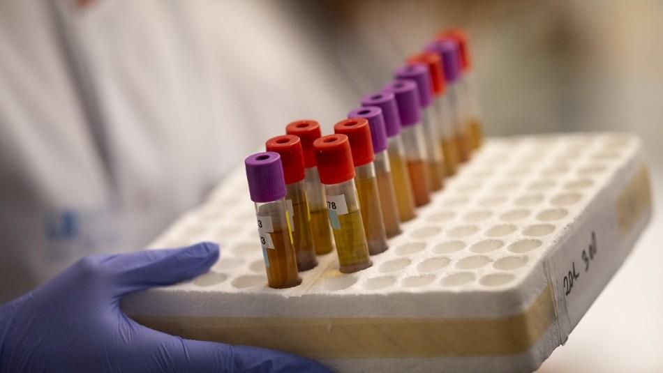 Prometedora vacuna de Oxford comenzaría sus ensayos en Chile a mediados de septiembre