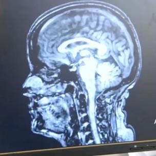 El coronavirus podría envejecer el cerebro hasta en 10 años