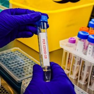 Informe Epidemiológico: Puerto Montt, Temuco y Punta Arenas encabezan cifras de casos activos