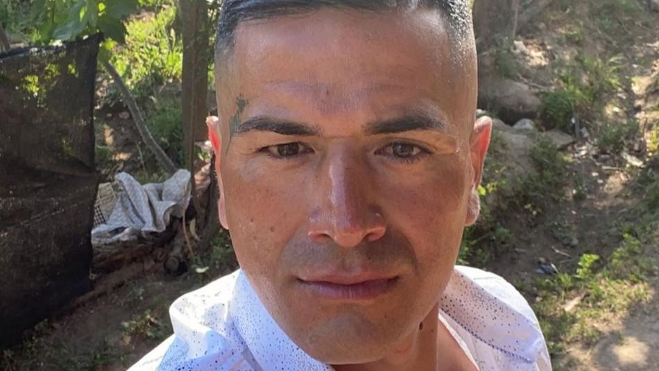 Kike Acuña se aplica botox en el rostro para suavizar arrugas: