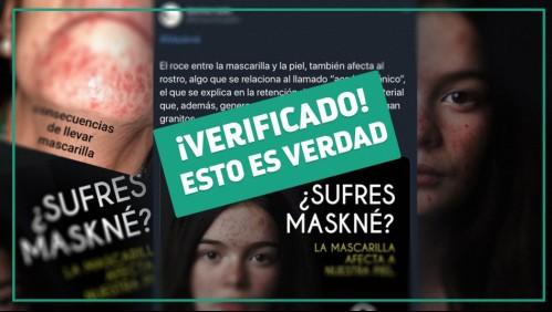 Fact Checking: El uso de mascarillas por tiempo prolongado aumenta la aparición de acné