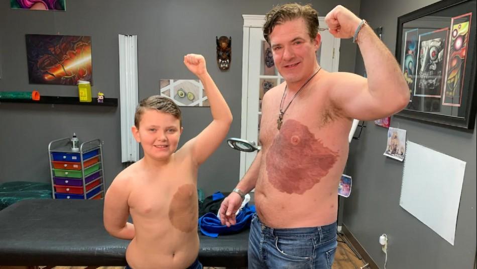Padre se vuelve viral al tatuarse la misma marca de nacimiento que tanto atormenta a su hijo