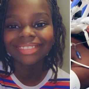 Niño de 10 años contrae coronavirus: Le amputaron brazos y piernas al desarrollar raro síndrome