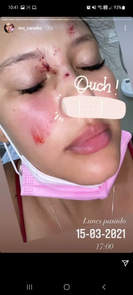 Accidente Michelle Carvalho