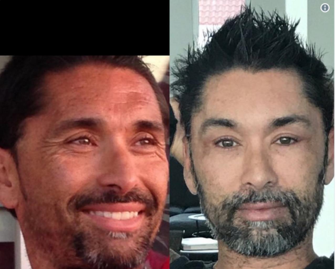 Antes y después del
