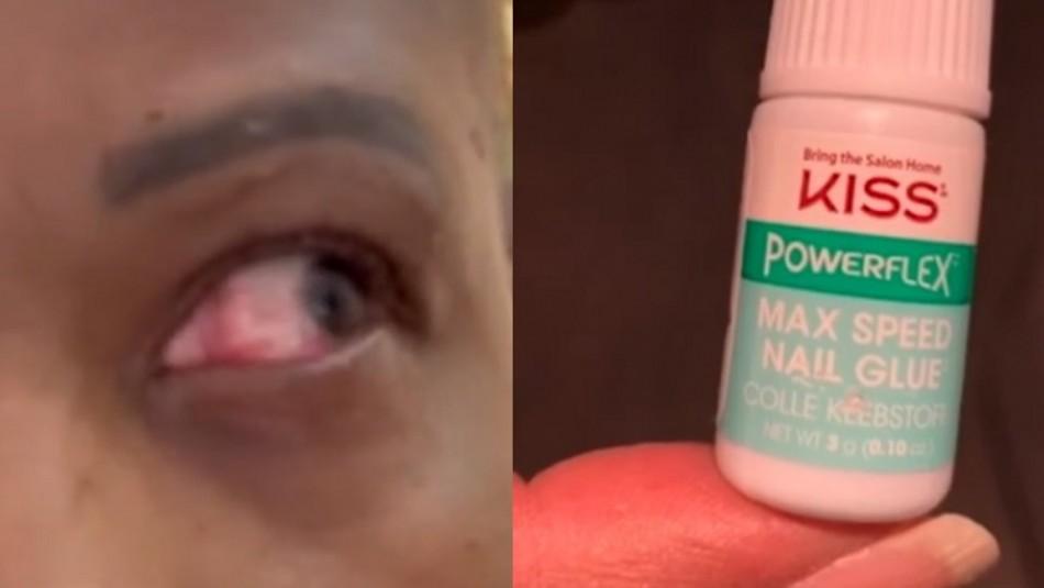 Mujer se aplica pegamento para uñas en un ojo creyendo que eran gotitas lubricantes
