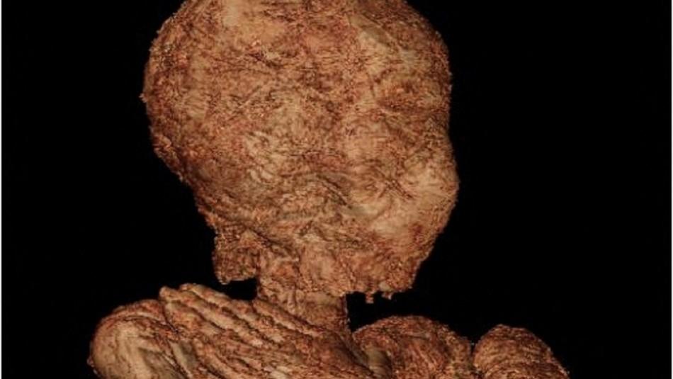 Inédito hallazgo: científicos publican fotos de una momia egipcia embarazada