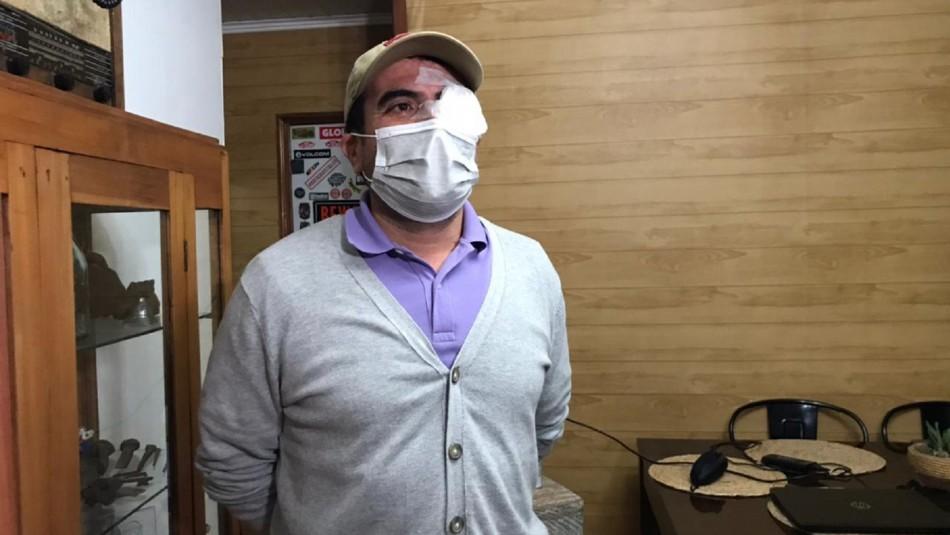 Candidato a concejal por Quinta Normal denuncia haber recibido impacto de balín en ojo izquierdo