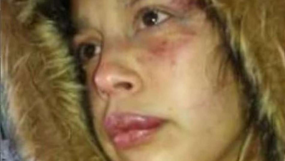 Hombre amenazó a mujer y desfiguró su rostro.