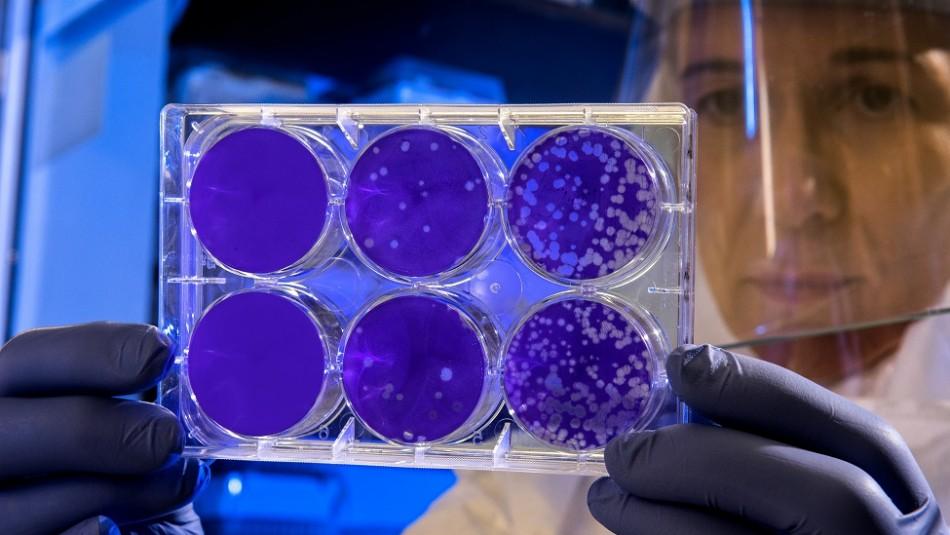 Científicos chinos alertan sobre un nuevo virus que podría afectar al mundo: La gripe aviar H5N8