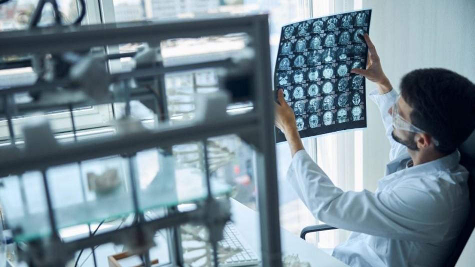 Nuevo medicamento contra el Alzheimer fue aprobado en Estados Unidos