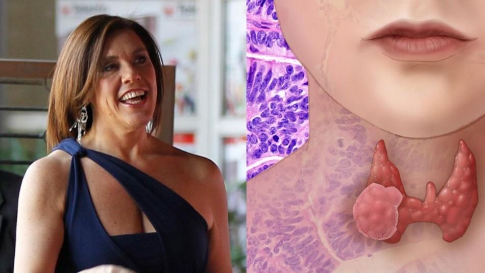 Cáncer de tiroides: Así fue la terapia a la que se sometió Vivi Kreutzberger