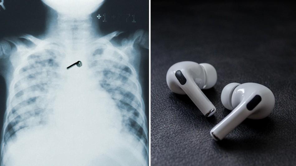 Hombre se queda dormido y se traga uno de sus AirPods: Los audífonos aún funcionan