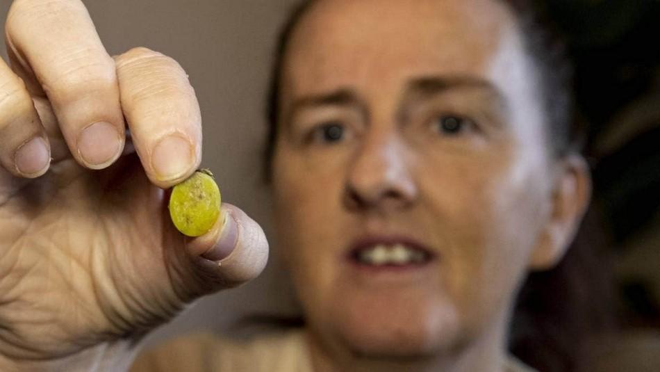 Tras someterse a un PCR: Mujer descubrió después de 37 años lo que se escondía en su nariz