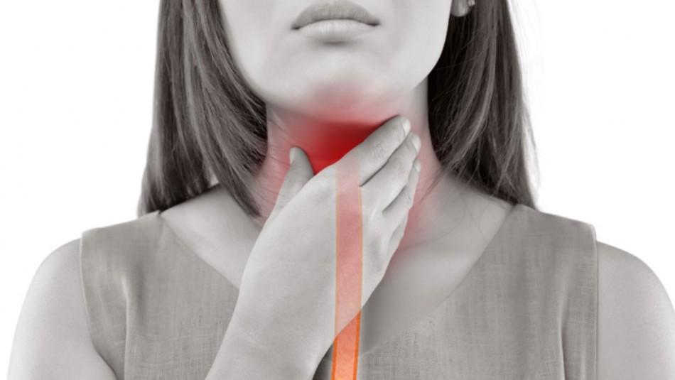 ¿Sufres de reflujo? Estos son los 6 tipos de alimentos que tienes que evitar