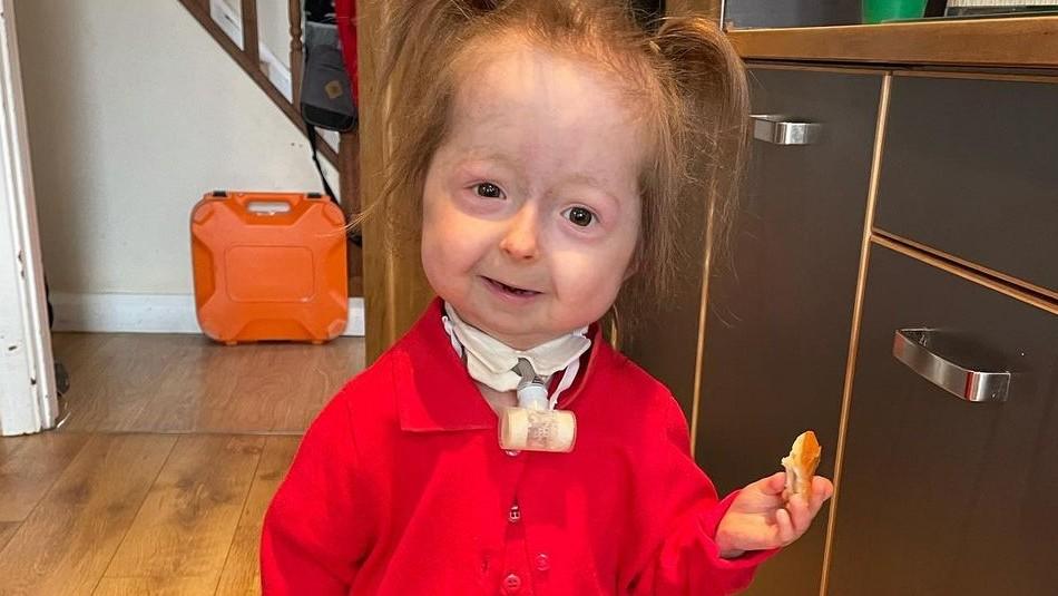 La niña de dos años que sufre una mutación única parecida a la enfermedad de