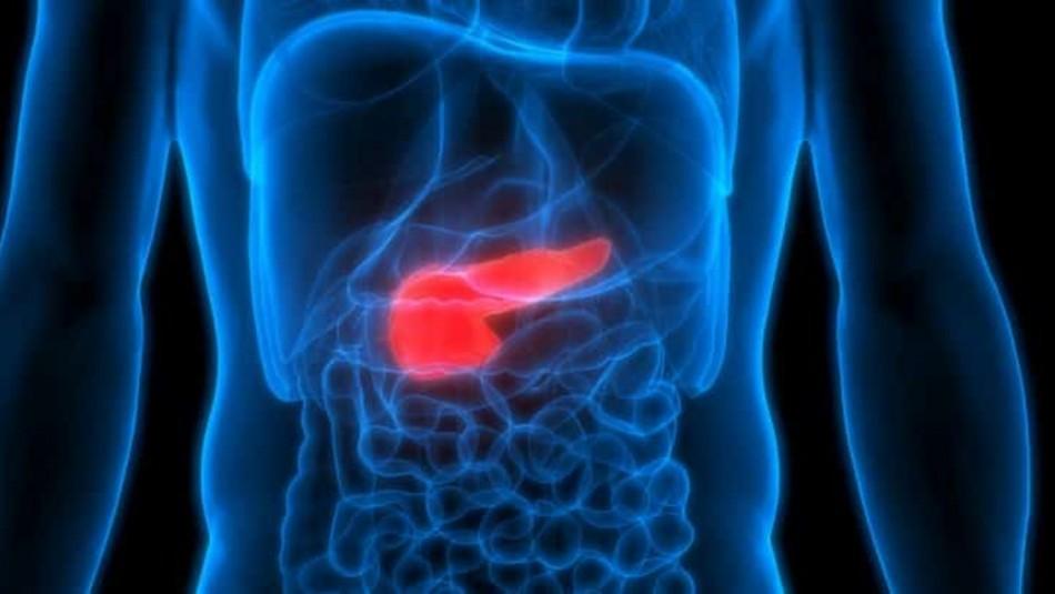 Cáncer de Páncreas: Los síntomas que te ayudarán a detectar la enfermedad