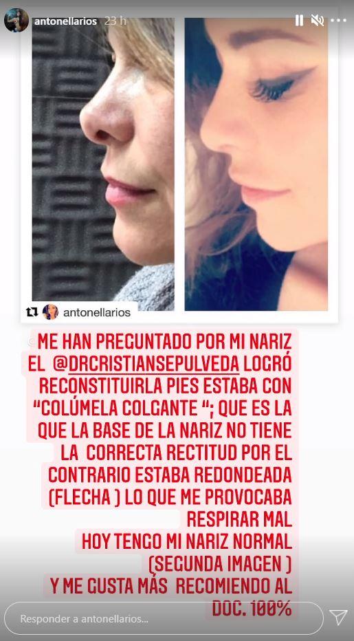 El perfil de Antonella Ríos