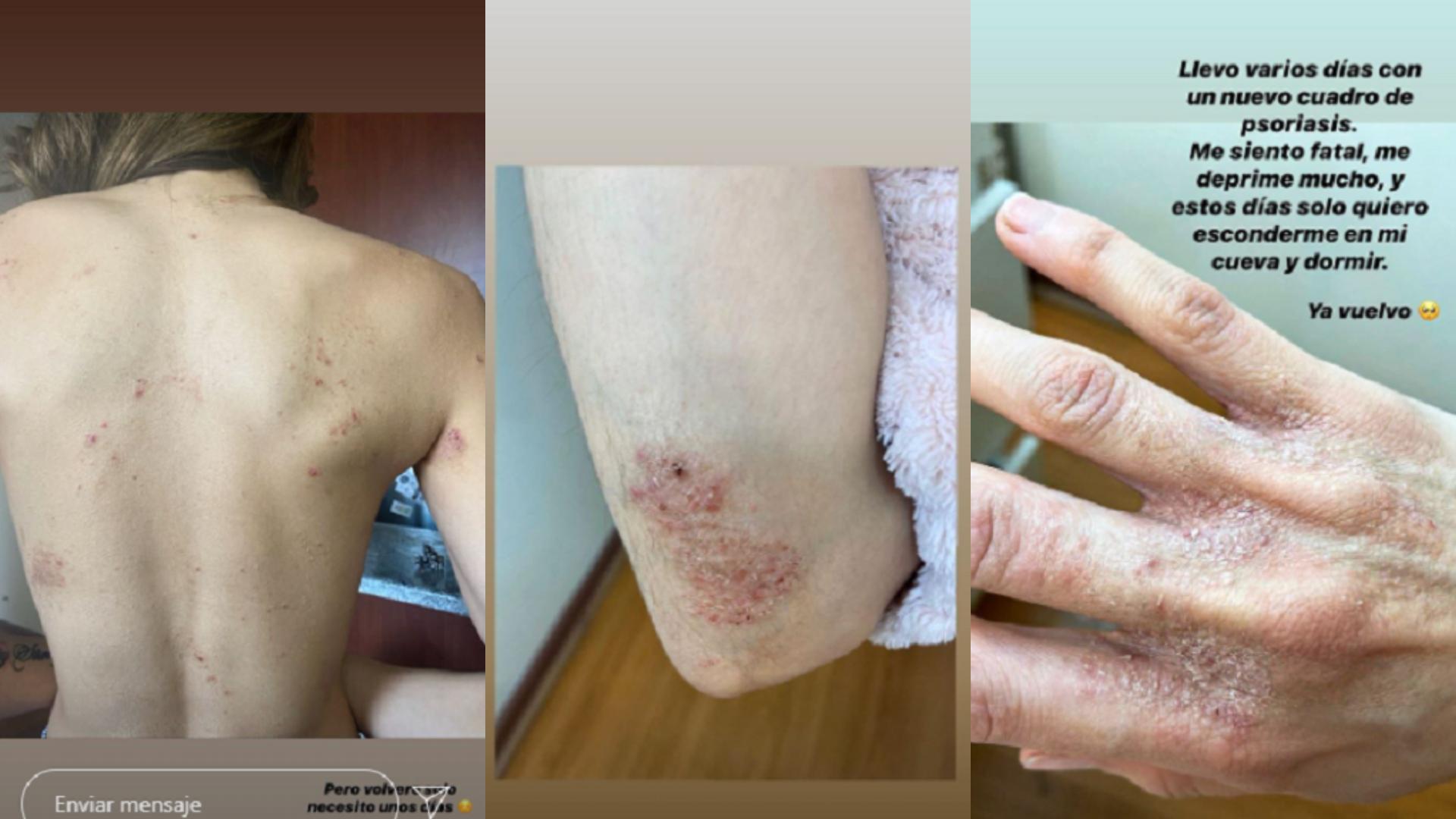 Silvina Varas con su cuadro de dermatitis (2020)