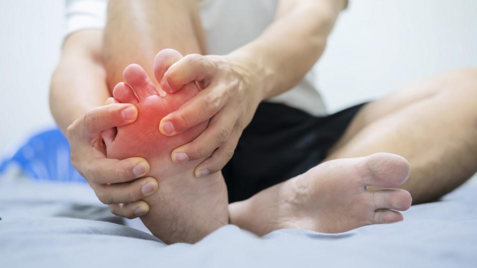 Genera dolores en articulaciones: Estos son los síntomas de la gota