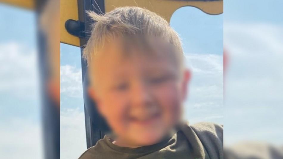 Niño de 4 años sufre graves quemaduras mientras se bañaba: el jabón le explotó en la cara