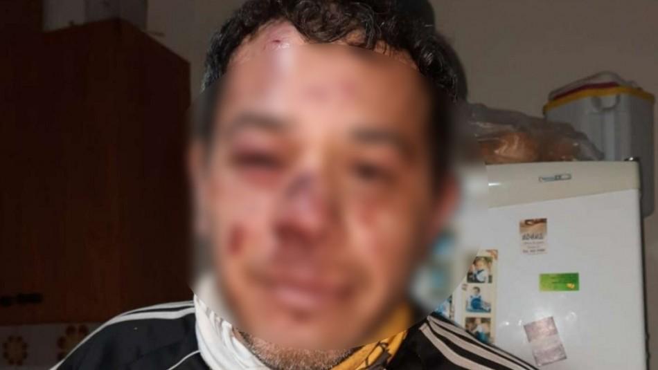 ¿Te acuerdas de mí?: hombre es atacado en venganza por sujeto al que sorprendió robando en 2019