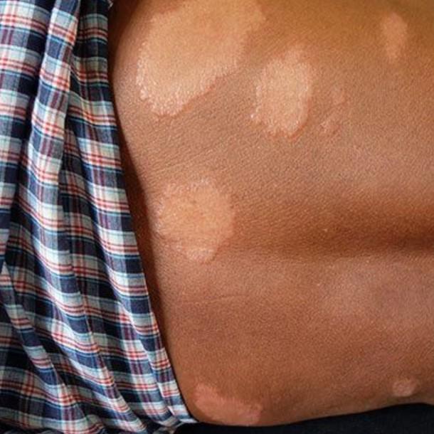 Seremi de Araucanía confirmó caso de lepra: Así es como se contagia la enfermedad