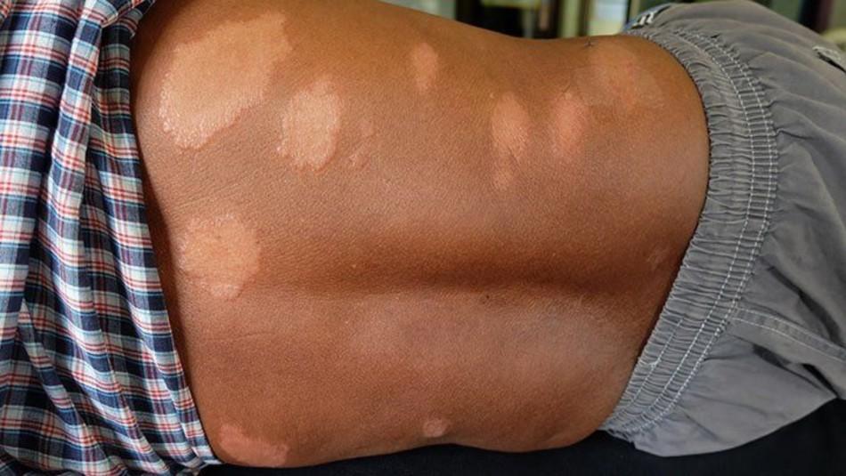 Estos son los síntomas de la lepra: Enfermedad que afecta la piel y nervios